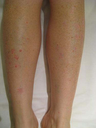 Mild Psoriasis Legs | www.pixshark.com - Images Galleries ...