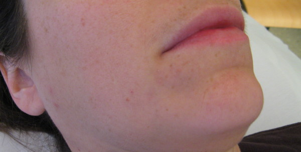 Mild Perioral Dermatitis Lips From this case I would like to