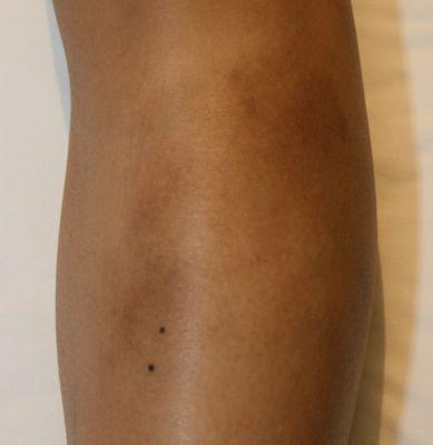 what causes skin eczema