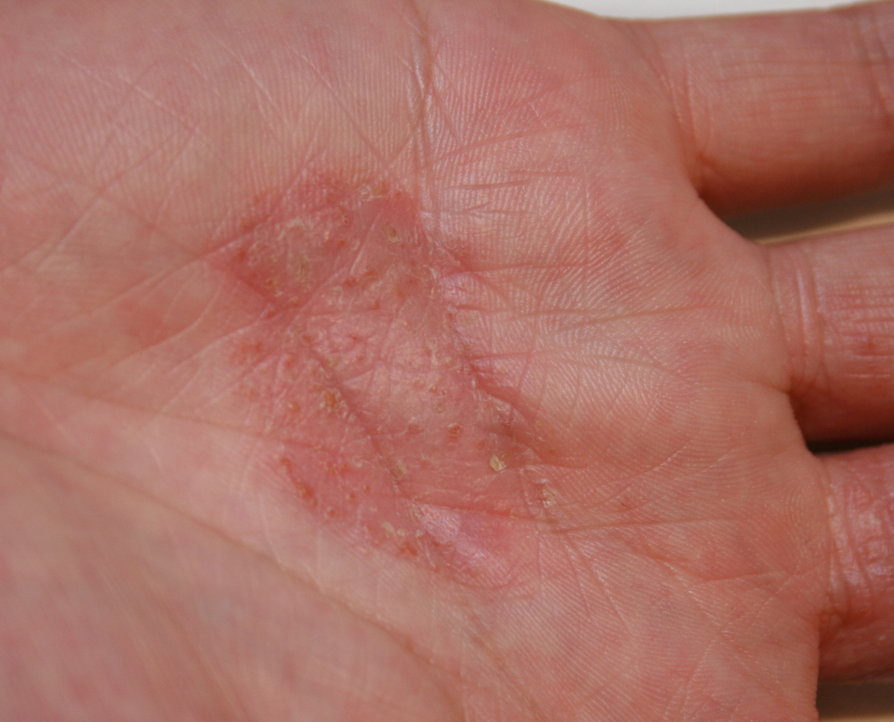 Hand eczema - before treatment