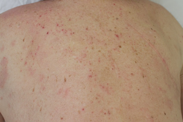 psoriasis on back