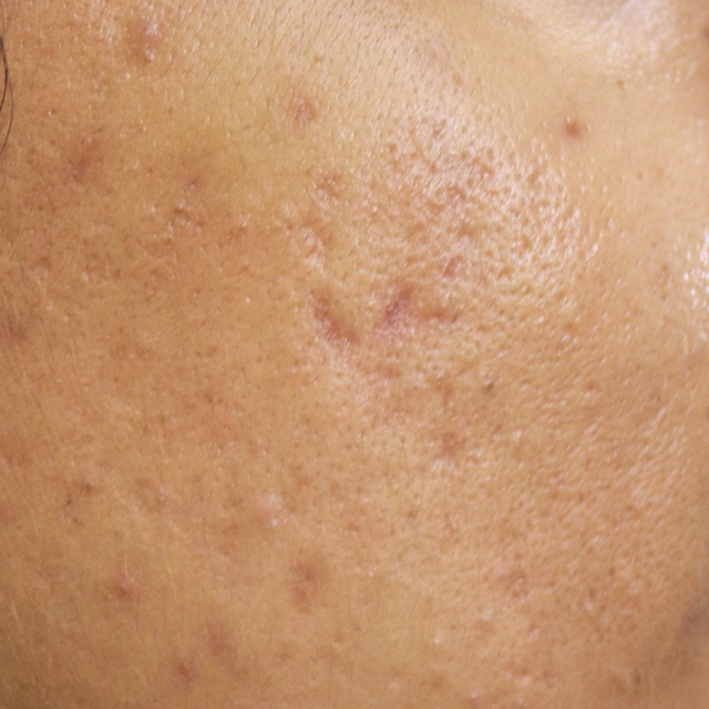 Curing Severe Acne Naturally