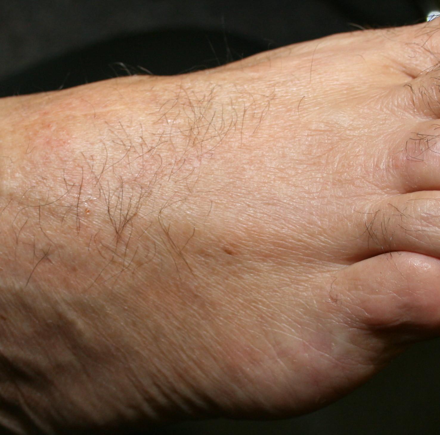 Fungal disease – Tinea | Dr. Erikson