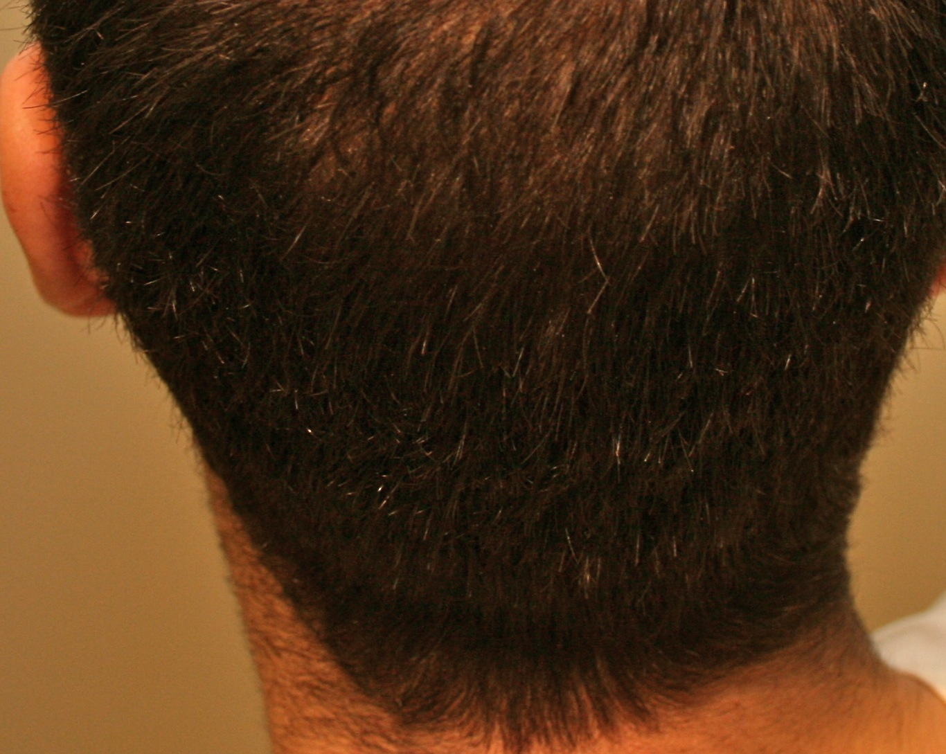 Alopecia Hair Loss on If You Would Like Dr  Erikson To Personally Treat Your Hair Loss  Or