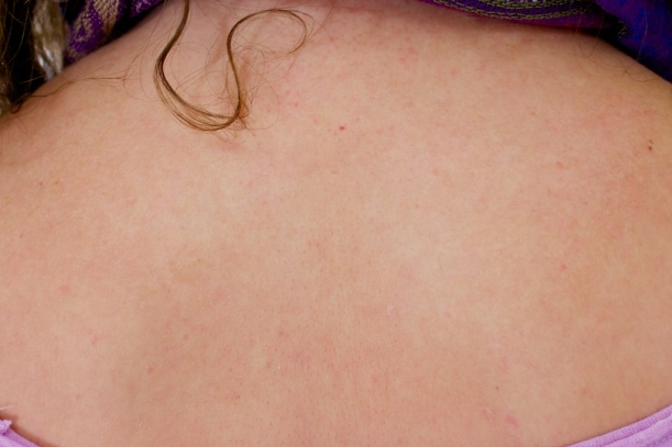 Eczema clear after herbal treatment