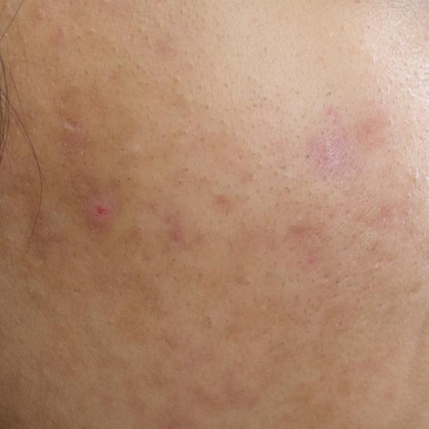 Acne hyper-pigmentation