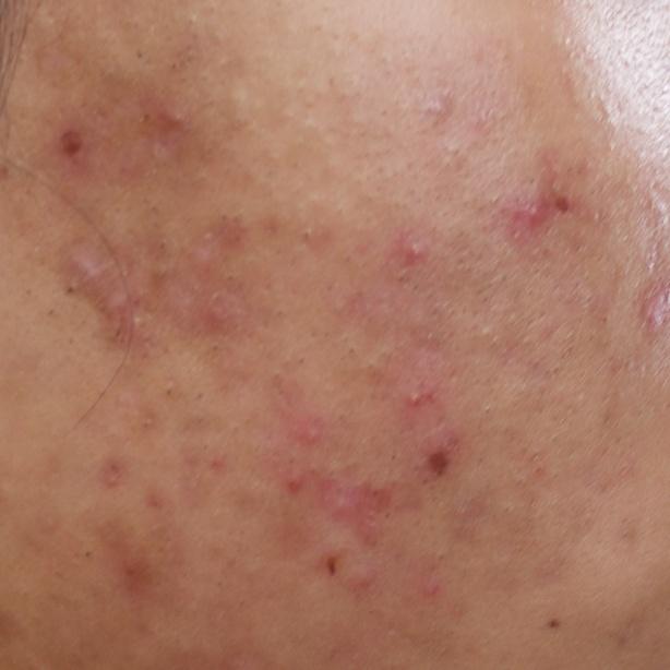 Active acne